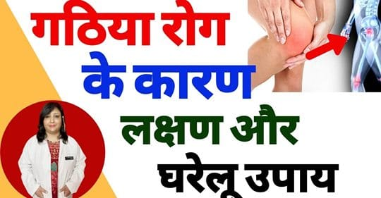 Gathiya Ayurvedic Treatment - Gathiya Bimari - गठिया रोग का इलाज